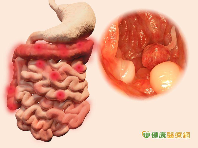 豬哥亮癌末病逝 你該知道的大腸癌防治
