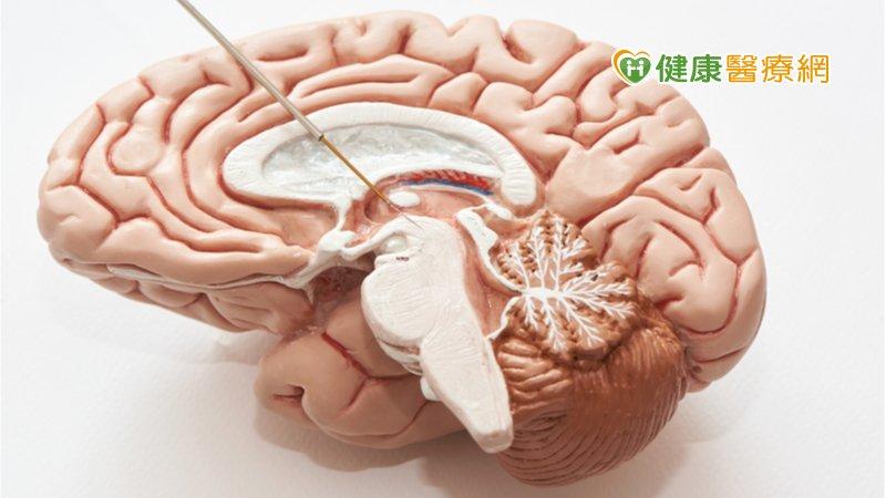 深層腦部電刺激 北榮成功改善妥瑞氏患者症狀