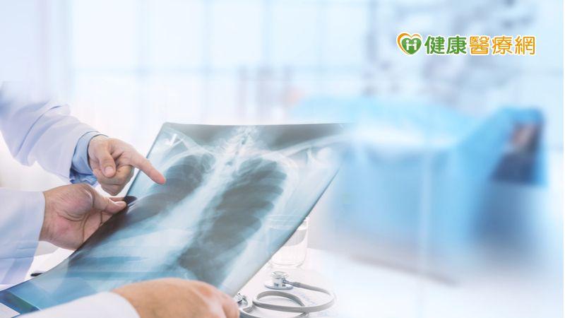 第三期非小細胞肺癌新曙光 放化療後接續免疫療法延長存活期
