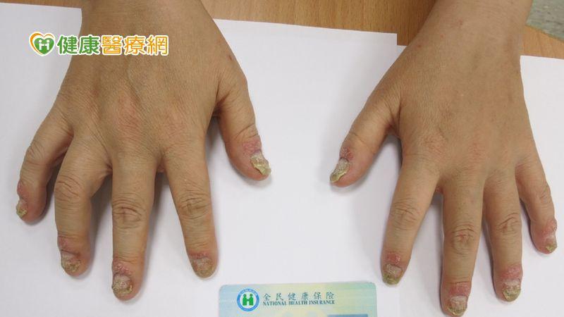 乾癬病友防關節炎小撇步 五大症狀要注意