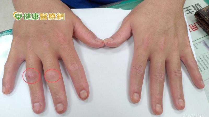 乾癬病友手指變香腸 竟是關節炎可能找上門