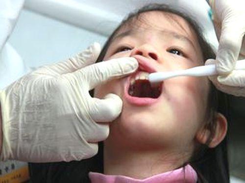 牙齿涂氟窝沟封填 降低龋齿达8成