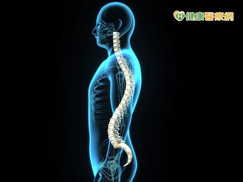 椎間盤突出長骨刺